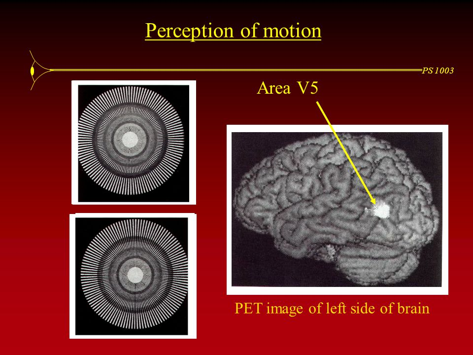 PS 1003 Perception of motion PET image of left side of brain Area V5