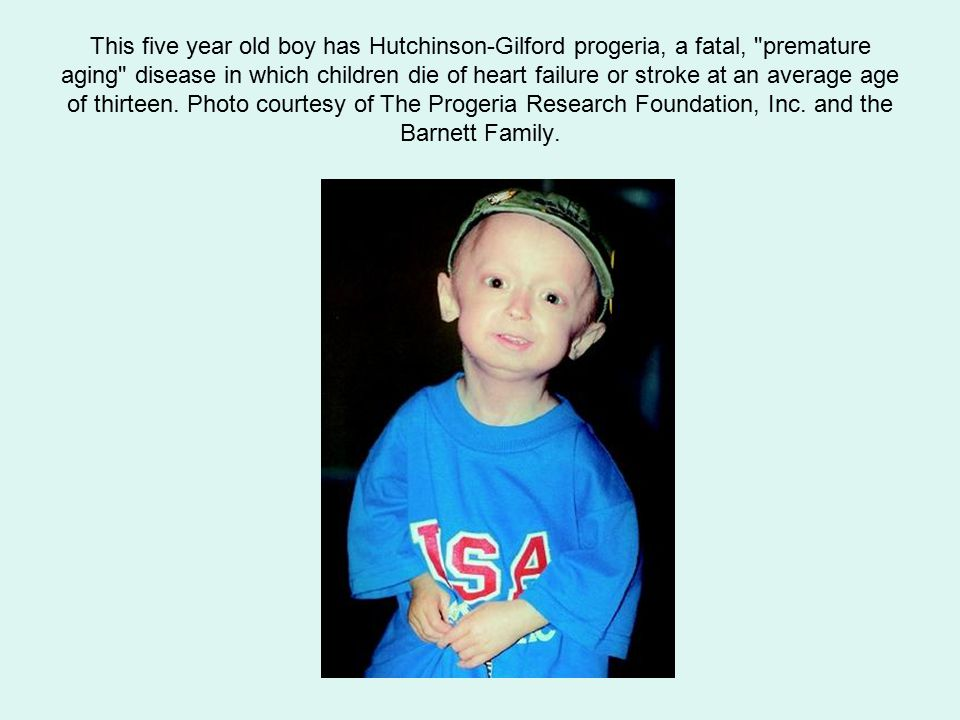 This five year old boy has Hutchinson-Gilford progeria, a fatal, premature aging disease in which children die of heart failure or stroke at an average age of thirteen.