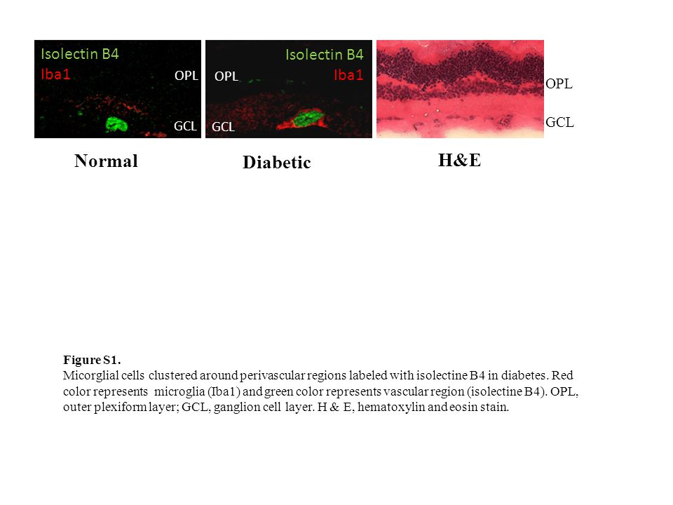 OPL GCL OPL GCL Normal Diabetic Isolectin B4 Iba1 Isolectin B4 Iba1 GCL OPL H&E Figure S1.