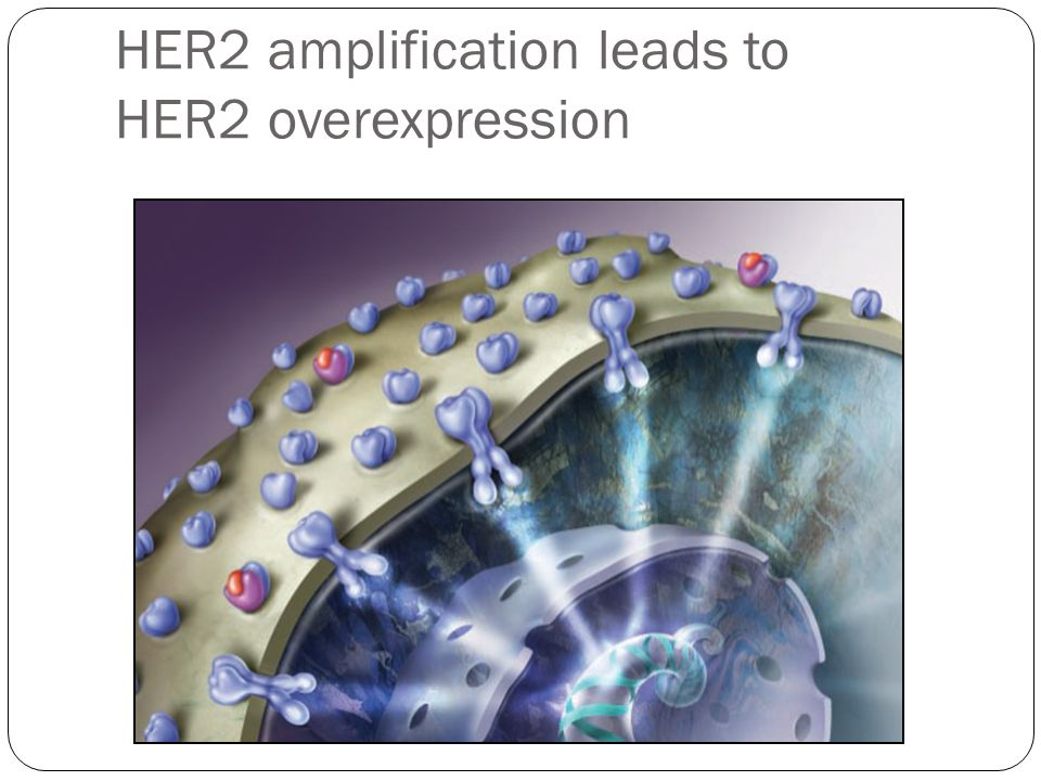 HER2 amplification leads to HER2 overexpression