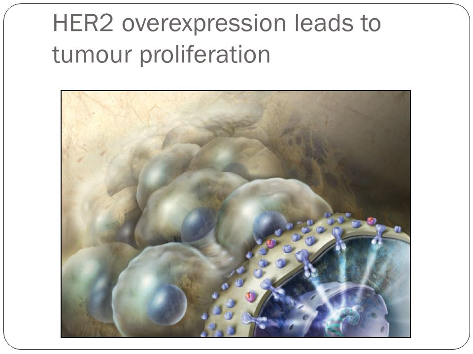 HER2 overexpression leads to tumour proliferation