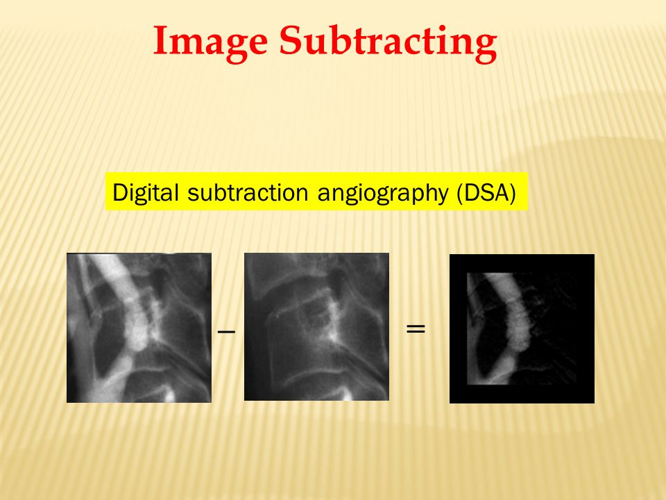 _ = Digital subtraction angiography (DSA) Image Subtracting