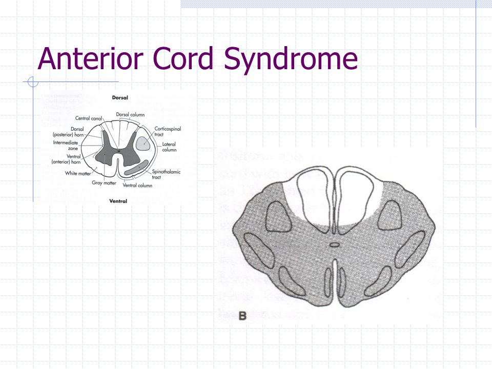 Anterior Cord Syndrome