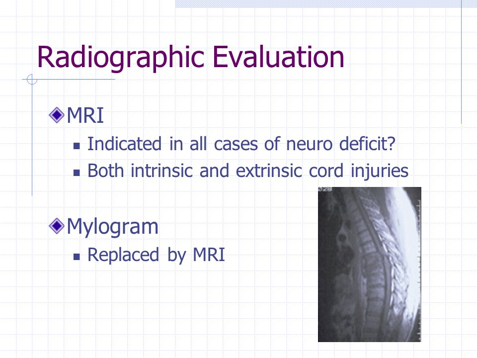 Radiographic Evaluation MRI Indicated in all cases of neuro deficit.