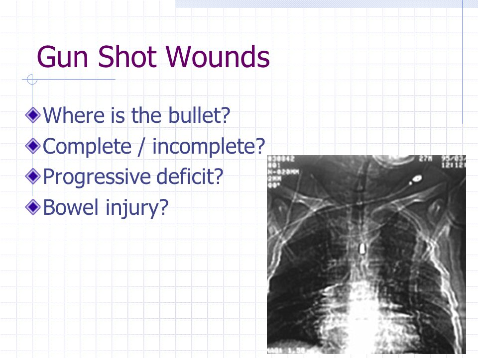 Gun Shot Wounds Where is the bullet Complete / incomplete Progressive deficit Bowel injury