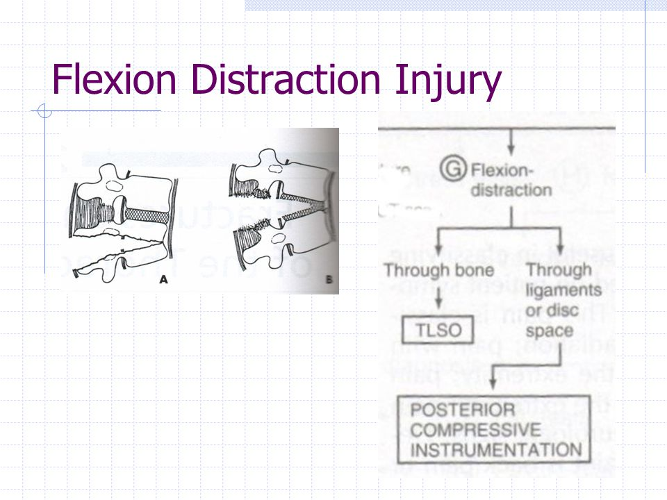 Flexion Distraction Injury