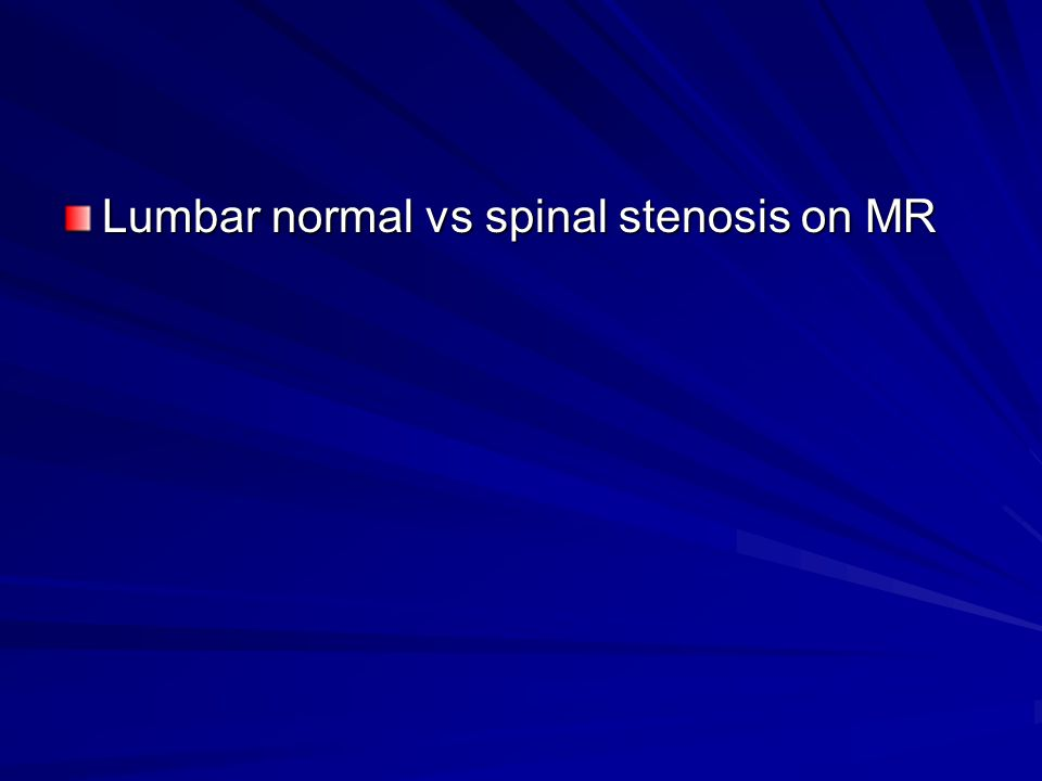 Lumbar normal vs spinal stenosis on MR