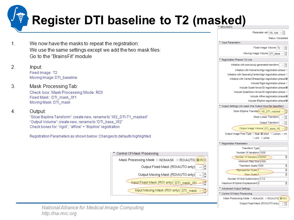 National Alliance for Medical Image Computing http://na-mic.org Register DTI baseline to T2 (masked) 1.We now have the masks to repeat the registration: We use the same settings except we add the two mask files: Go to the BrainsFit module 2.Input: Fixed Image: T2 Moving Image: DTI_baseline 3.Mask Processing Tab: Check box: Mask Processing Mode: ROI Fixed Mask: DTI_mask_Xf1 Moving Mask: DTI_mask 4.Output: Slicer Bspline Tansform : create new, rename to Xf2_DTI-T1_masked Output Volume : create new, rename to DTI_base_Xf2 Check boxes for: rigid , affine + Bspline registration Registration Parameters as shown below: Changes to defaults highlighted