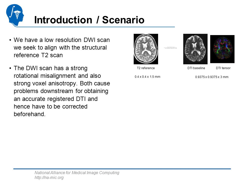National Alliance for Medical Image Computing http://na-mic.org Introduction / Scenario We have a low resolution DWI scan we seek to align with the structural reference T2 scan The DWI scan has a strong rotational misalignment and also strong voxel anisotropy.