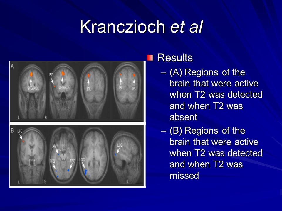 Kranczioch et al Results –(A) Regions of the brain that were active when T2 was detected and when T2 was absent –(B) Regions of the brain that were active when T2 was detected and when T2 was missed