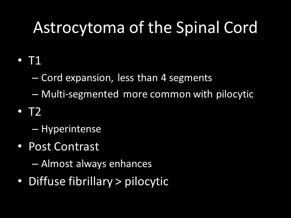 Astrocytoma of the Spinal Cord T1 – Cord expansion, less than 4 segments – Multi-segmented more common with pilocytic T2 – Hyperintense Post Contrast – Almost always enhances Diffuse fibrillary > pilocytic