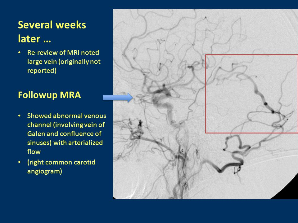 Followup MRA Showed abnormal venous channel (involving vein of Galen and confluence of sinuses) with arterialized flow (right common carotid angiogram) Several weeks later … Re-review of MRI noted large vein (originally not reported)