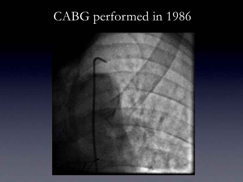 CABG performed in 1986