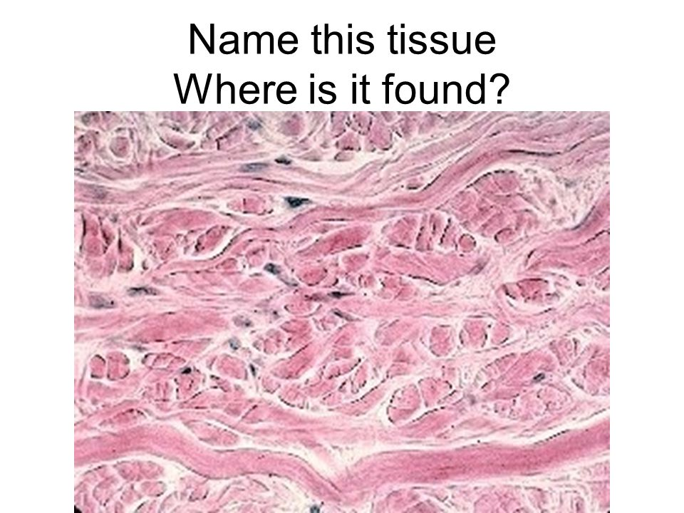 Name this tissue Where is it found