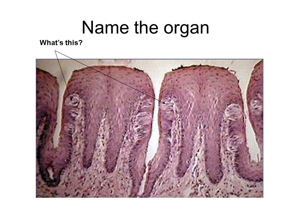 Name the organ What's this