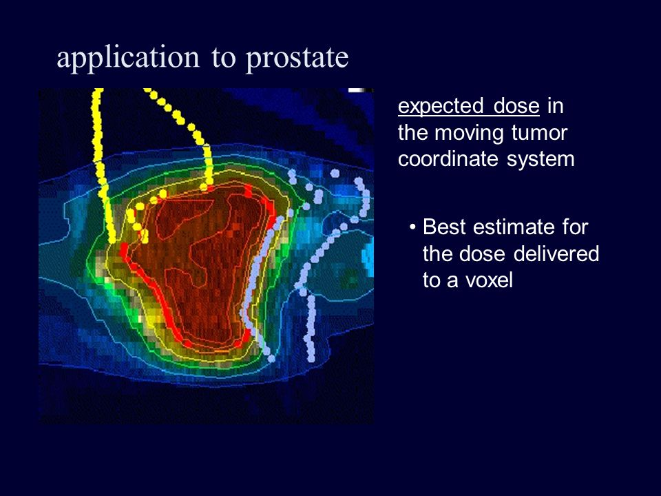 application to prostate expected dose in the moving tumor coordinate system Best estimate for the dose delivered to a voxel