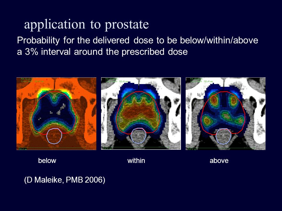 application to prostate Probability for the delivered dose to be below/within/above a 3% interval around the prescribed dose belowabovewithin (D Maleike, PMB 2006)