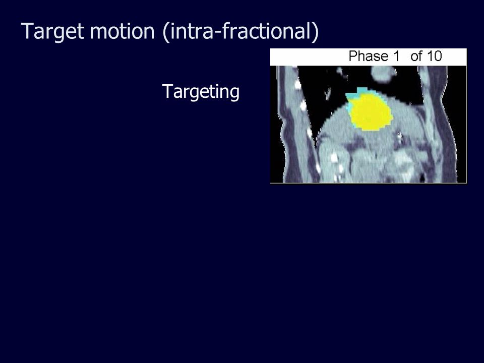 Target motion (intra-fractional) Targeting
