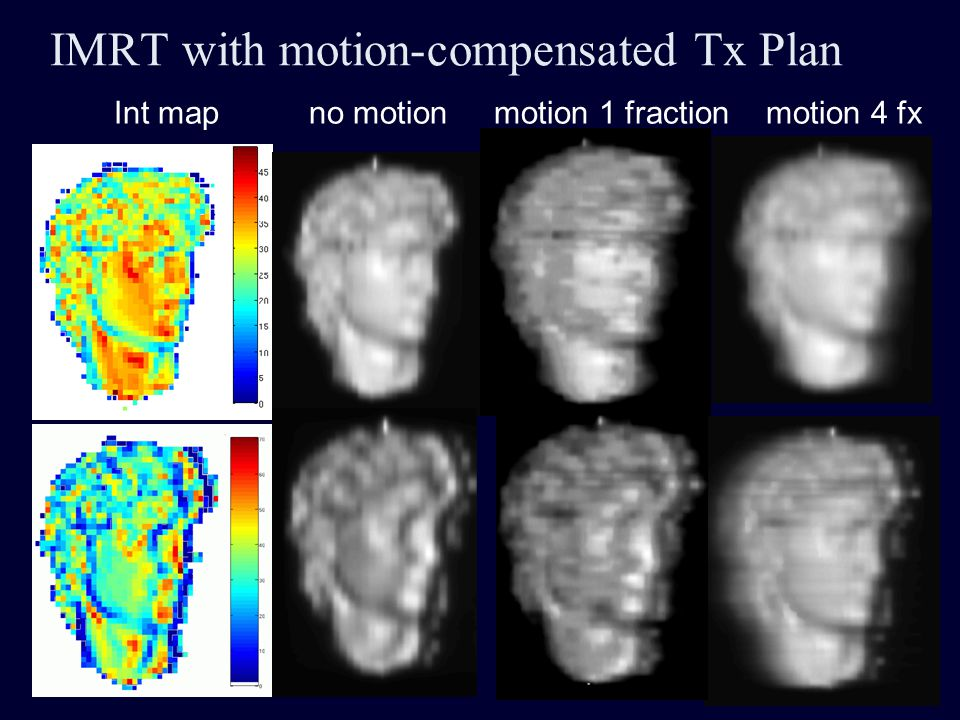 IMRT with motion-compensated Tx Plan Int map no motion motion 1 fraction motion 4 fx
