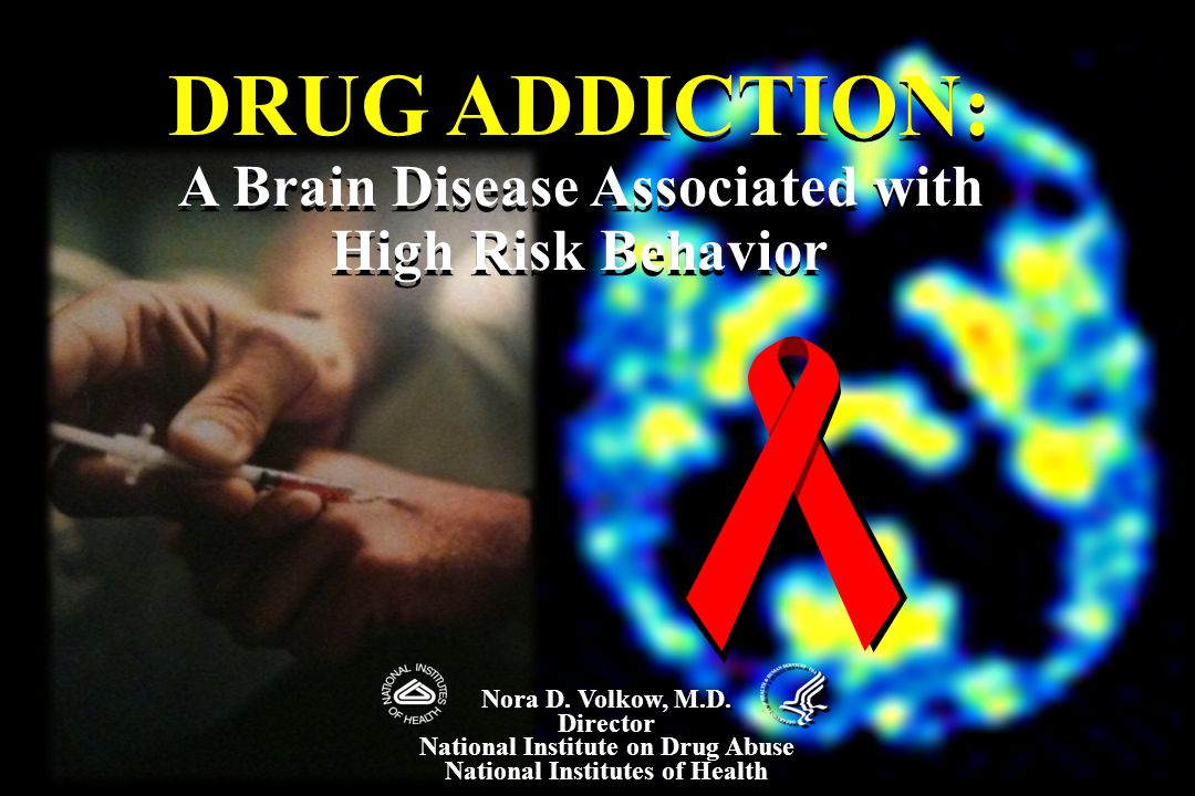 DRUG ADDICTION: A Brain Disease Associated with High Risk Behavior DRUG ADDICTION: A Brain Disease Associated with High Risk Behavior Nora D.