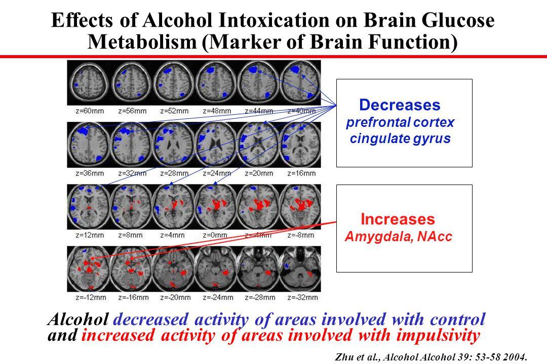 Alcohol decreased activity of areas involved with control and increased activity of areas involved with impulsivity Decreases prefrontal cortex cingulate gyrus Increases Amygdala, NAcc Zhu et al., Alcohol Alcohol 39: 53-58 2004.