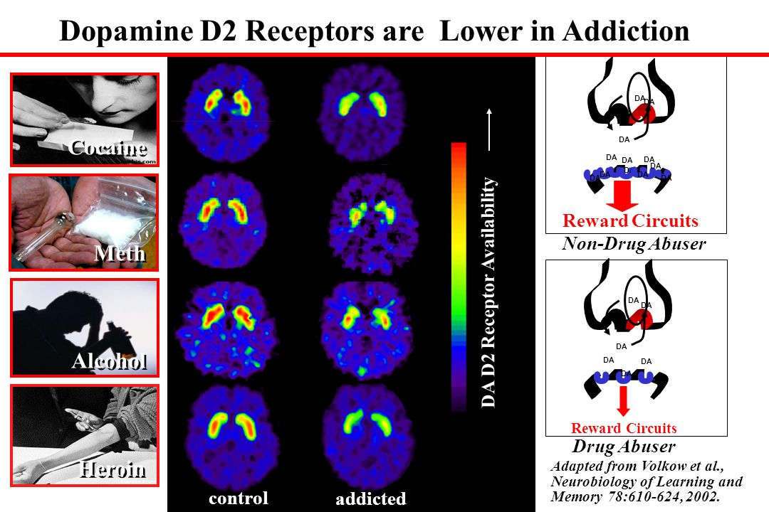 Dopamine D2 Receptors are Lower in Addiction DA D2 Receptor Availability Cocaine Alcohol DA Reward Circuits DA Reward Circuits DA Drug Abuser Non-Drug Abuser Heroin Meth control addicted Adapted from Volkow et al., Neurobiology of Learning and Memory 78:610-624, 2002.