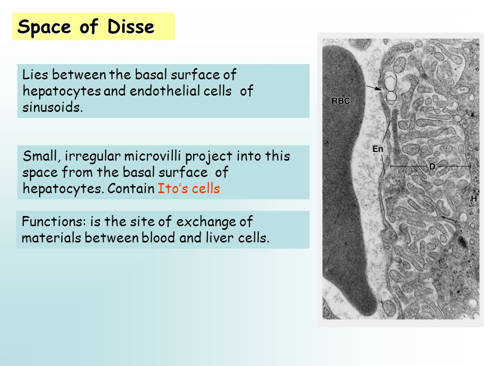 Space of Disse Lies between the basal surface of hepatocytes and endothelial cells of sinusoids.