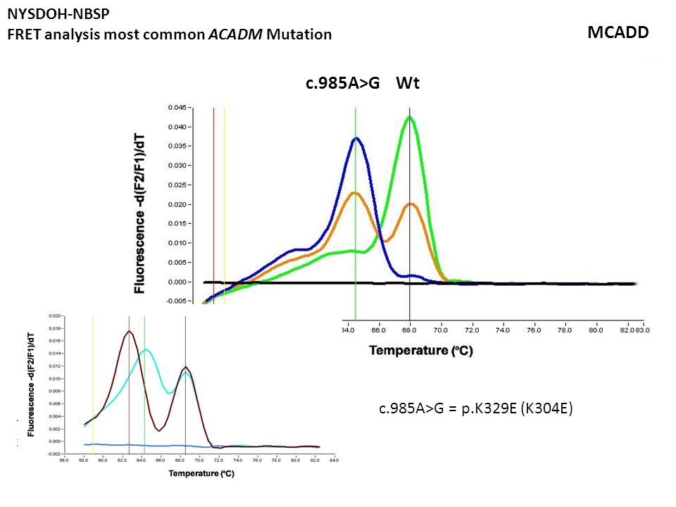 Wtc.985A>G MCADD c.985A>G = p.K329E (K304E) NYSDOH-NBSP FRET analysis most common ACADM Mutation