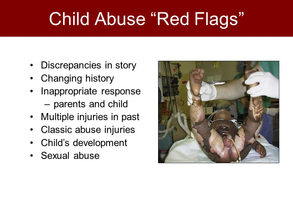 Discrepancies in story Changing history Inappropriate response –parents and child Multiple injuries in past Classic abuse injuries Child's development Sexual abuse Child Abuse Red Flags