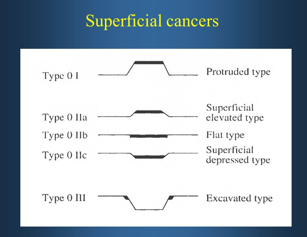 Superficial cancers