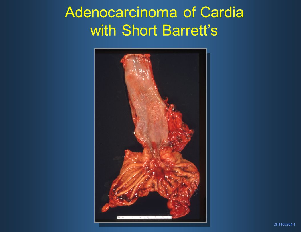 CP1109264-1 Adenocarcinoma of Cardia with Short Barrett's