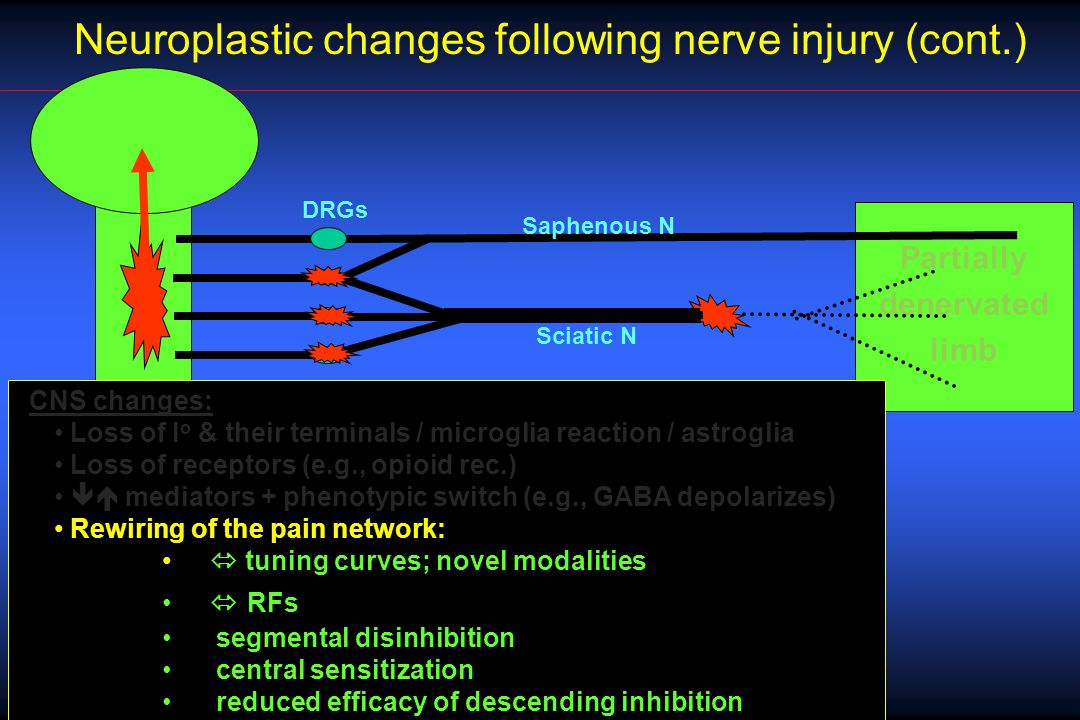 Partially denervated limb Neuroplastic changes following nerve injury (cont.) DRGs Sciatic N Saphenous N CNS changes: Loss of I o & their terminals / microglia reaction / astroglia Loss of receptors (e.g., opioid rec.)  mediators + phenotypic switch (e.g., GABA depolarizes) Rewiring of the pain network:  tuning curves; novel modalities  RFs segmental disinhibition central sensitization reduced efficacy of descending inhibition
