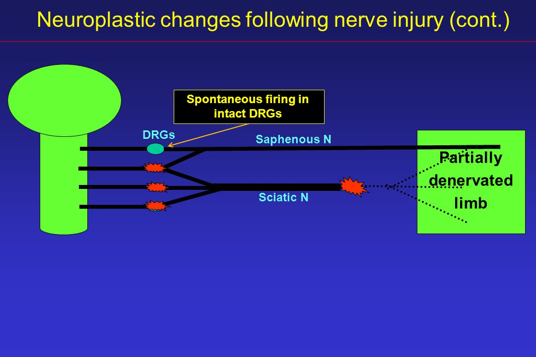 Neuroplastic changes following nerve injury (cont.) DRGs Sciatic N Spontaneous firing in intact DRGs Partially denervated limb Saphenous N