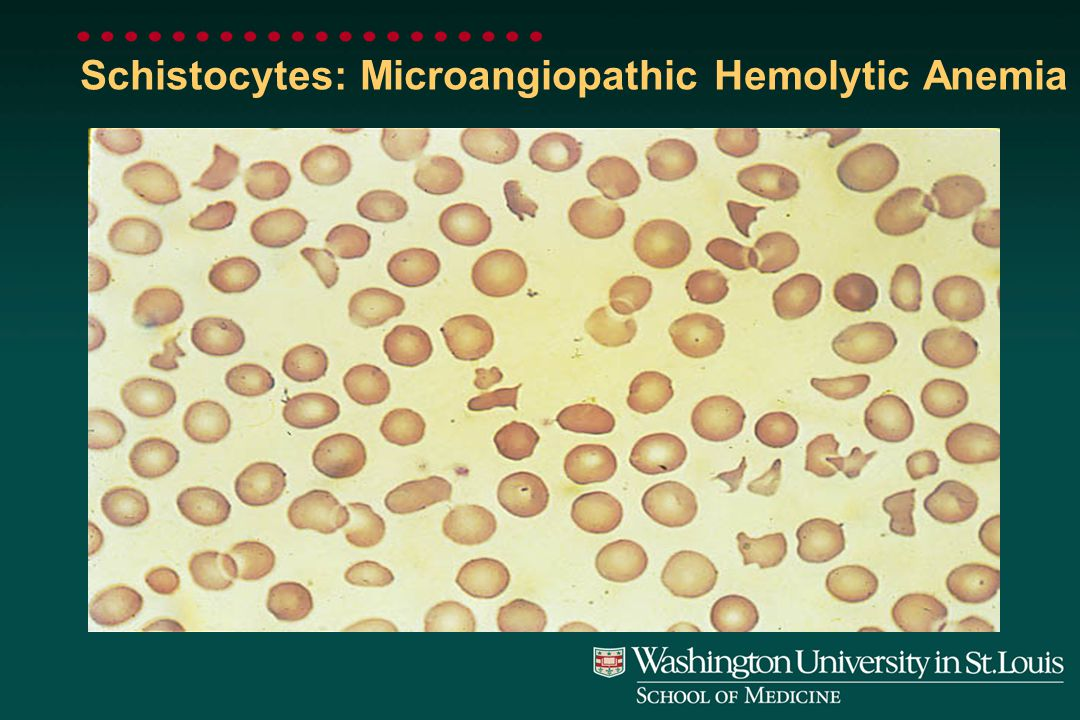 Spherocytes: Hereditary Spherocytosis