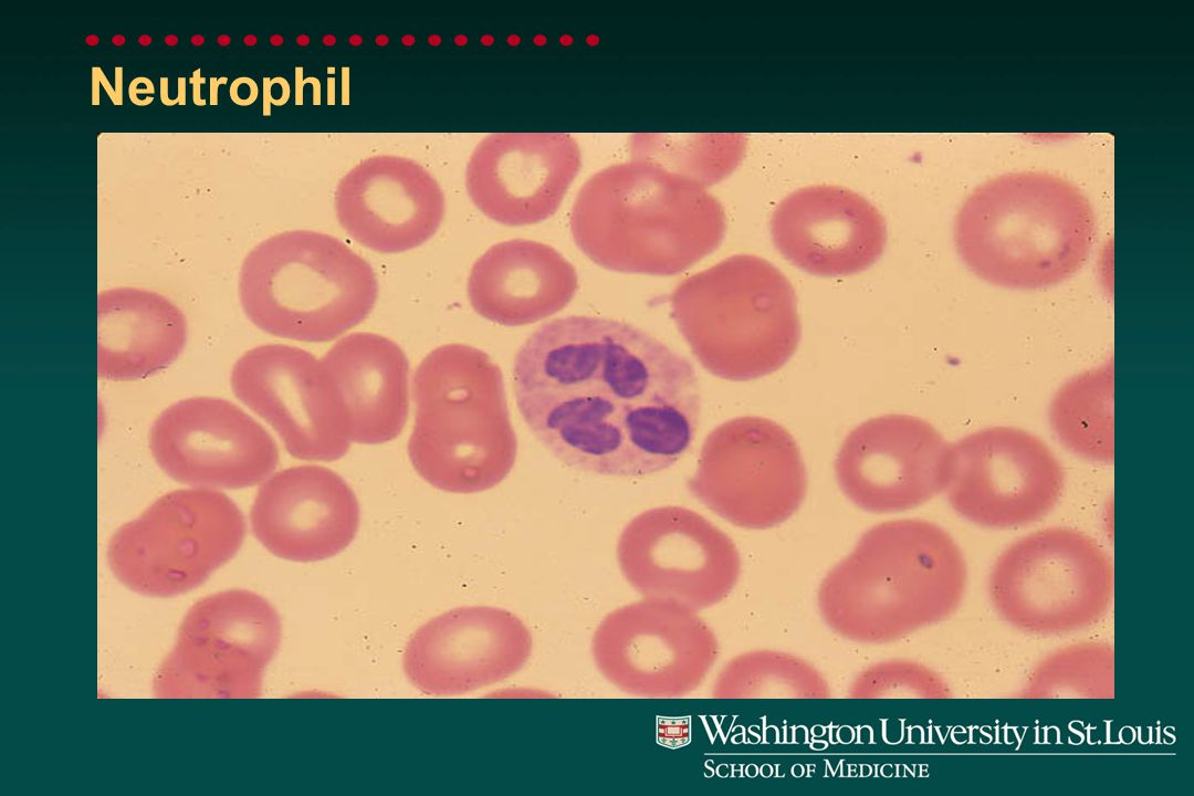 Morphology of Leukocytes Normal WBC populations Neutrophils (Granulocytes) Lymphocytes Monocytes Eosinophils Basophils