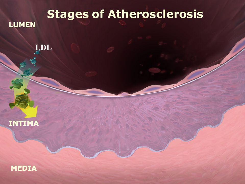 LUMEN MEDIA INTIMA Stages of Atherosclerosis LDL