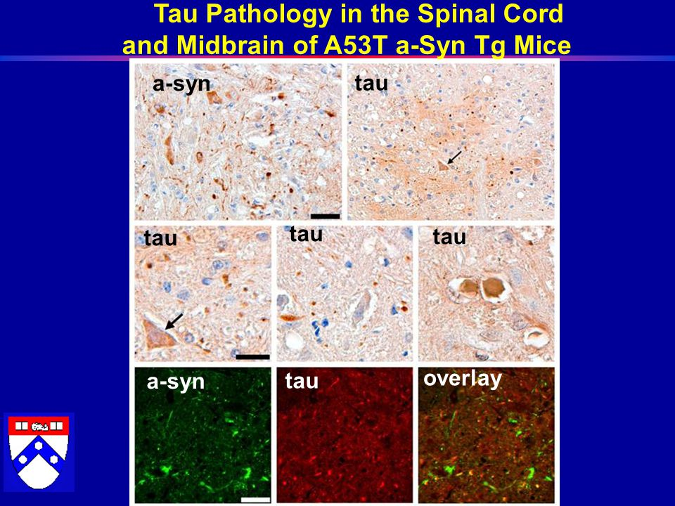 a-syn tau overlay Tau Pathology in the Spinal Cord and Midbrain of A53T a-Syn Tg Mice