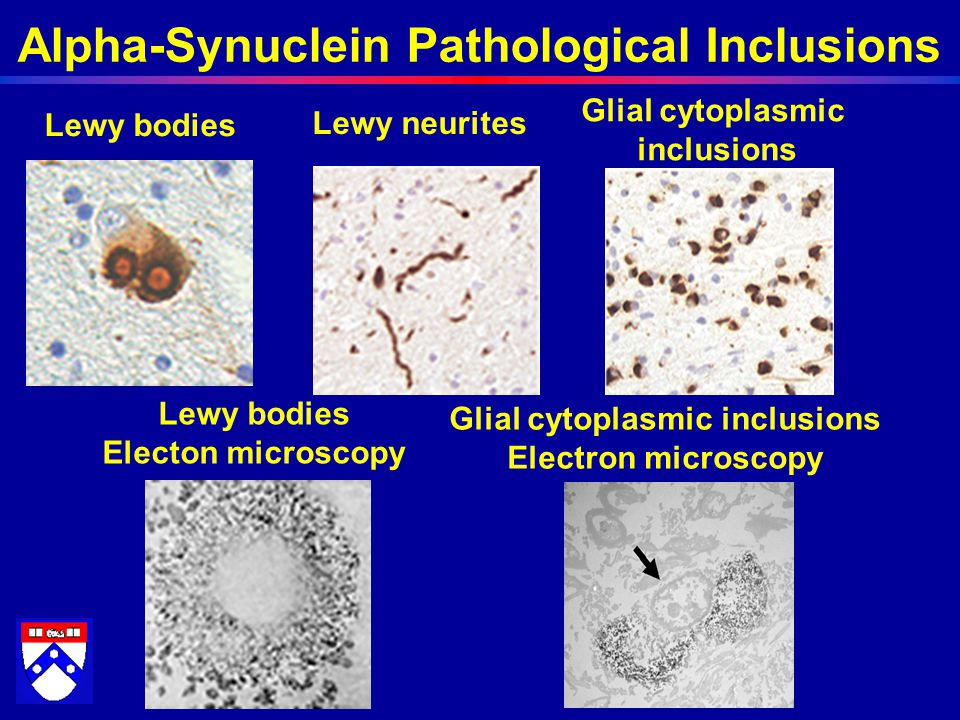 Alpha-Synuclein Pathological Inclusions Lewy bodies Electon microscopy Lewy neurites Lewy bodies Glial cytoplasmic inclusions Glial cytoplasmic inclusions Electron microscopy