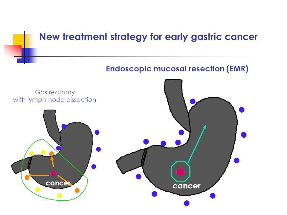 ● ● ● ● ● ● ● ● ● ● ● ● New treatment strategy for early gastric cancer cancer Gastrectomy with lymph node dissection ● ● ● ● ● ● ● ● ● ● ● ● cancer Endoscopic mucosal resection (EMR)