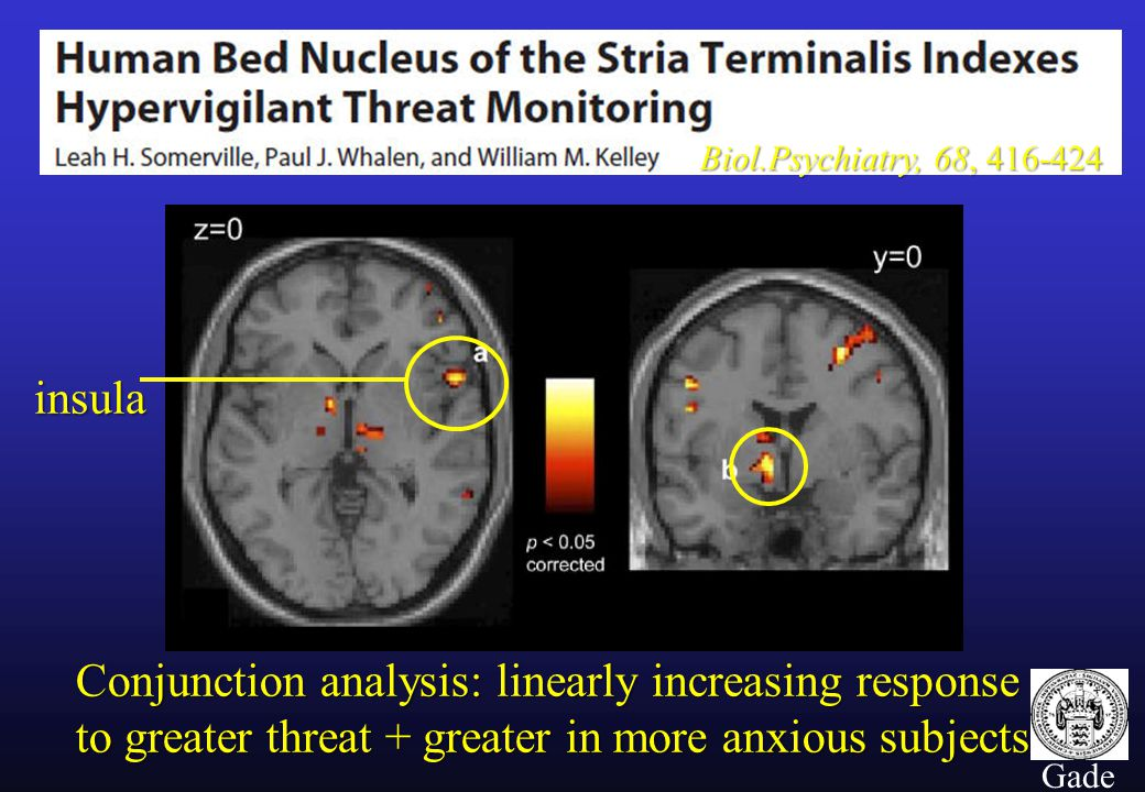 13 Gade Biol.Psychiatry, 68, 416-424 Conjunction analysis: linearly increasing response to greater threat + greater in more anxious subjects insula