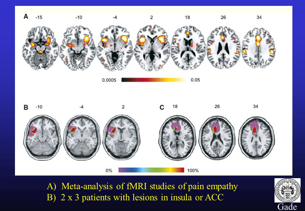 24 Gade A) Meta-analysis of fMRI studies of pain empathy B) 2 x 3 patients with lesions in insula or ACC