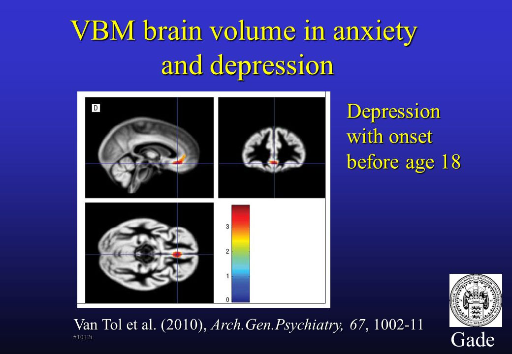 Gade VBM brain volume in anxiety and depression Van Tol et al.