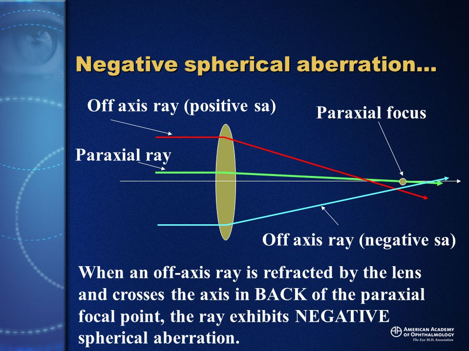Paraxial focus Paraxial ray Off axis ray (positive sa) Off axis ray (negative sa) When an off-axis ray is refracted by the lens and crosses the axis in BACK of the paraxial focal point, the ray exhibits NEGATIVE spherical aberration.