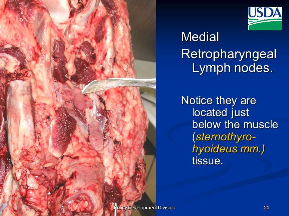 UNITED STATES DEPARTMENT OF AGRICULTURE FOOD SAFETY AND INSPECTION SERVICE October 10, 2008 (v2)20 Medial Retropharyngeal Lymph nodes.