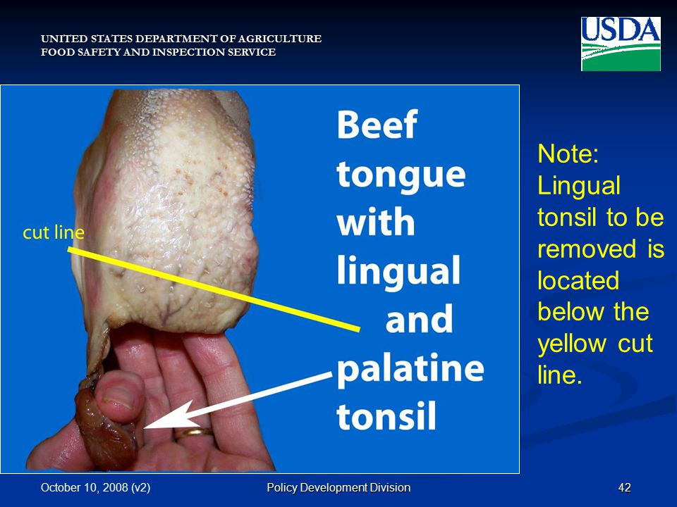 UNITED STATES DEPARTMENT OF AGRICULTURE FOOD SAFETY AND INSPECTION SERVICE October 10, 2008 (v2)42Policy Development Division Note: Lingual tonsil to be removed is located below the yellow cut line.