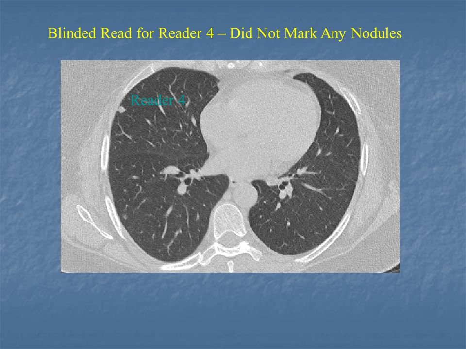 Reader 4 Blinded Read for Reader 4 – Did Not Mark Any Nodules