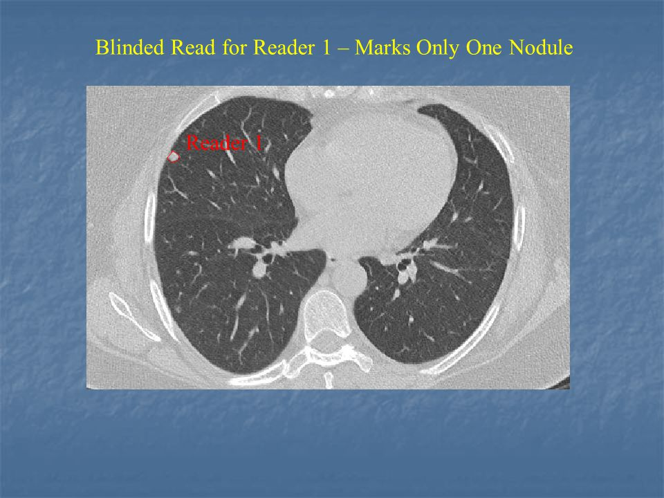 Reader 1 Blinded Read for Reader 1 – Marks Only One Nodule