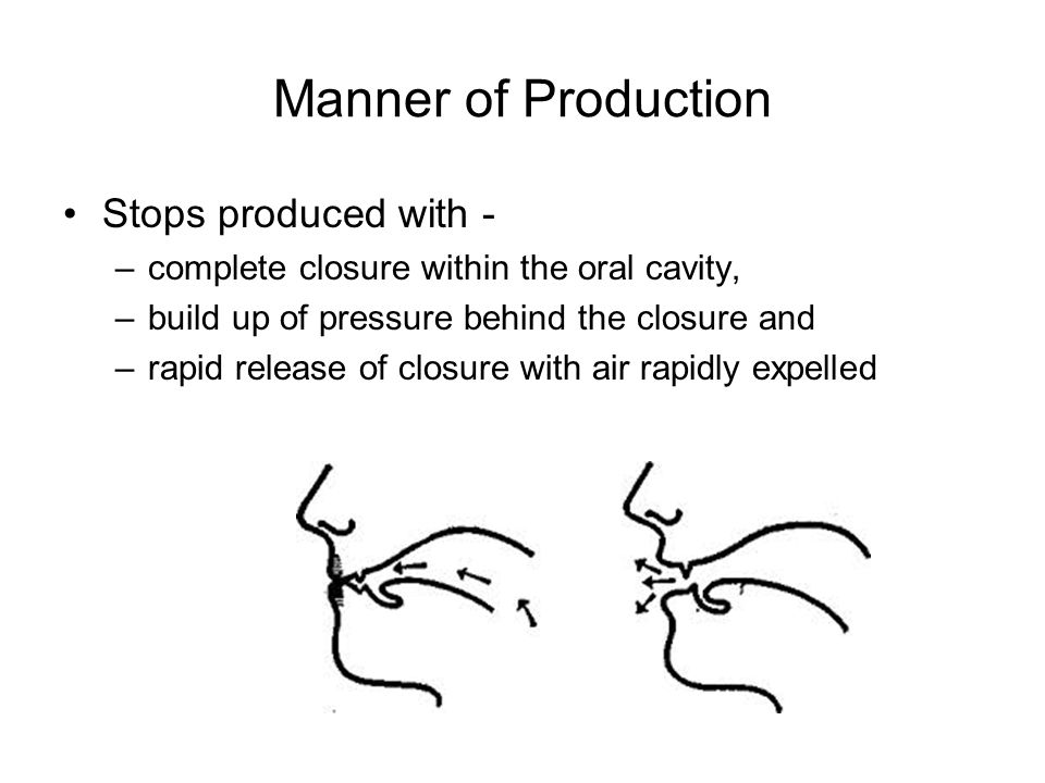 Manner of Production Stops produced with - –complete closure within the oral cavity, –build up of pressure behind the closure and –rapid release of closure with air rapidly expelled