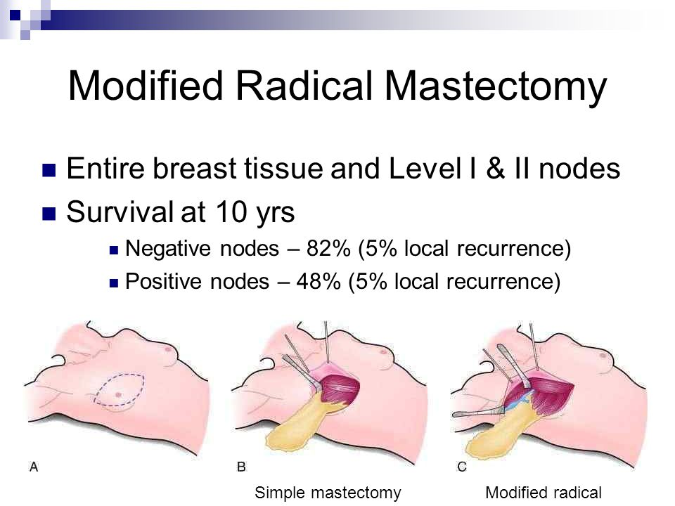 Modified Radical Mastectomy Entire breast tissue and Level I & II nodes Survival at 10 yrs Negative nodes – 82% (5% local recurrence) Positive nodes – 48% (5% local recurrence) Simple mastectomyModified radical