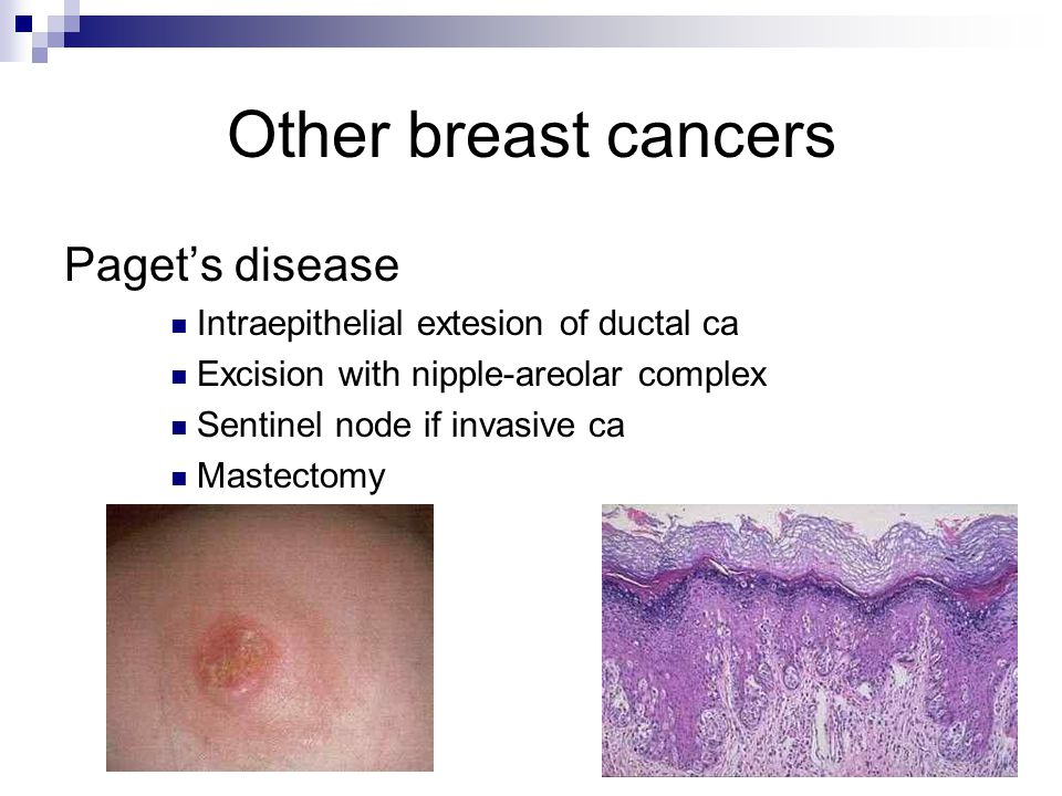 Other breast cancers Paget's disease Intraepithelial extesion of ductal ca Excision with nipple-areolar complex Sentinel node if invasive ca Mastectomy